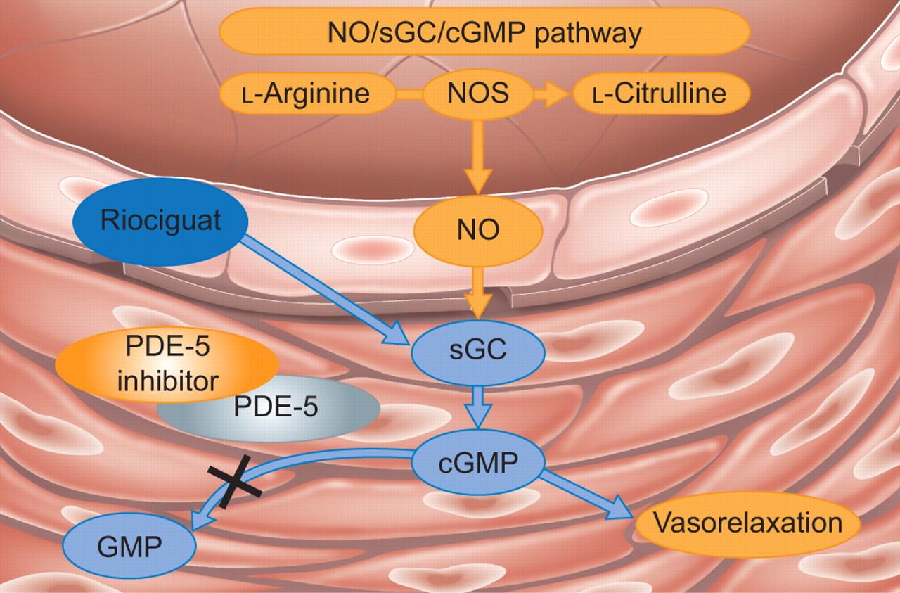Riociguat: an upcoming therapy in chronic thromboembolic pulmonary  hypertension? | European Respiratory Society