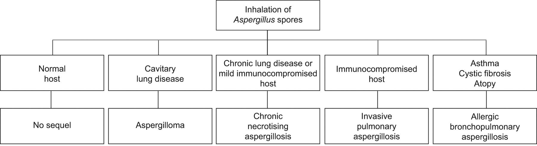 Pulmonary aspergillosis: a clinical review | European