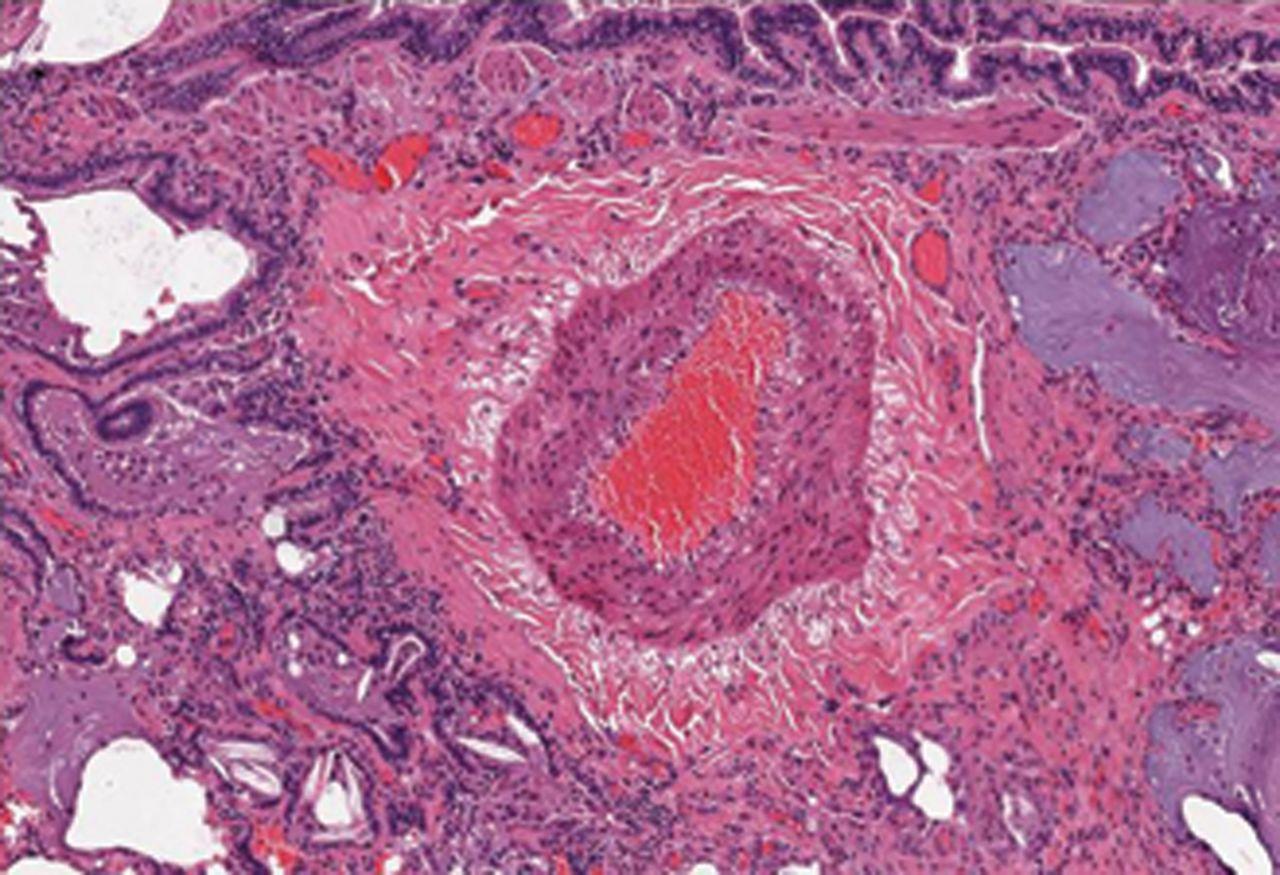 Scleroderma Lung Disease