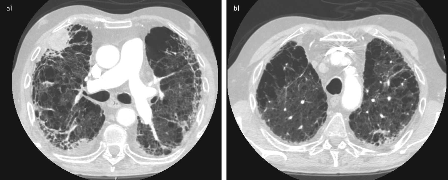 Pulmonary Hypertension In Chronic Interstitial Lung