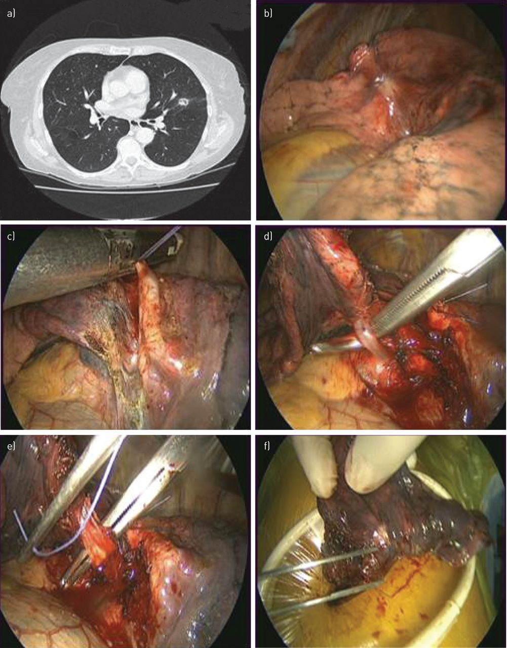 Stage 4 Lung Cancer >> Surgery For Nonsmall Cell Lung Cancer European Respiratory Society