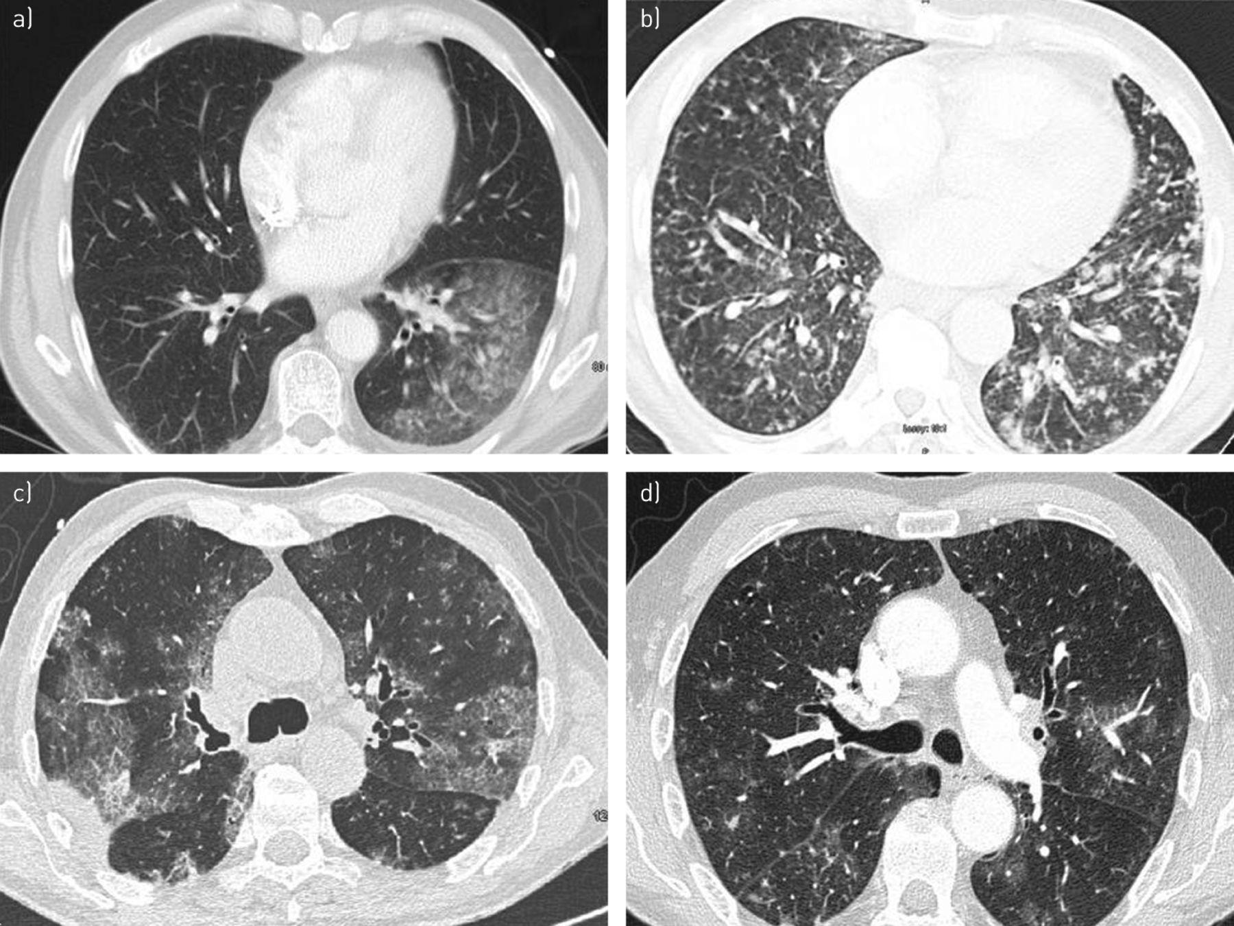 serious bronchopulmonary involvement due to chronic lymphocytic leukaemia