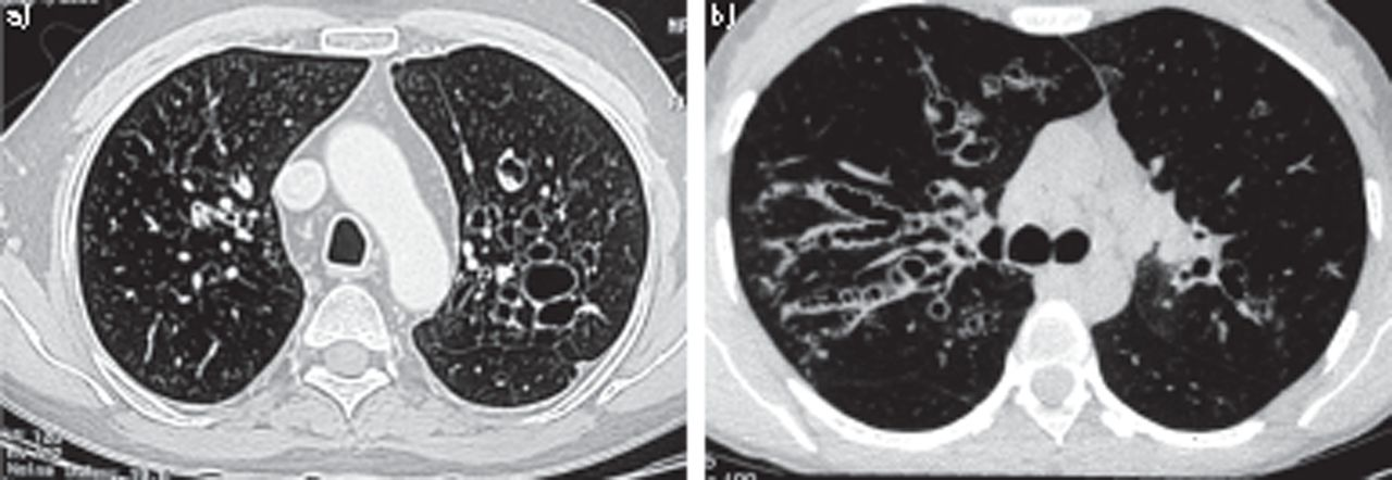 Allergic aspergillosis of the respiratory tract | European