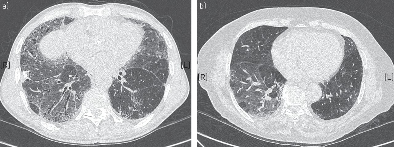 diagnosis and management of idiopathic pulmonary fibrosis: french, Skeleton