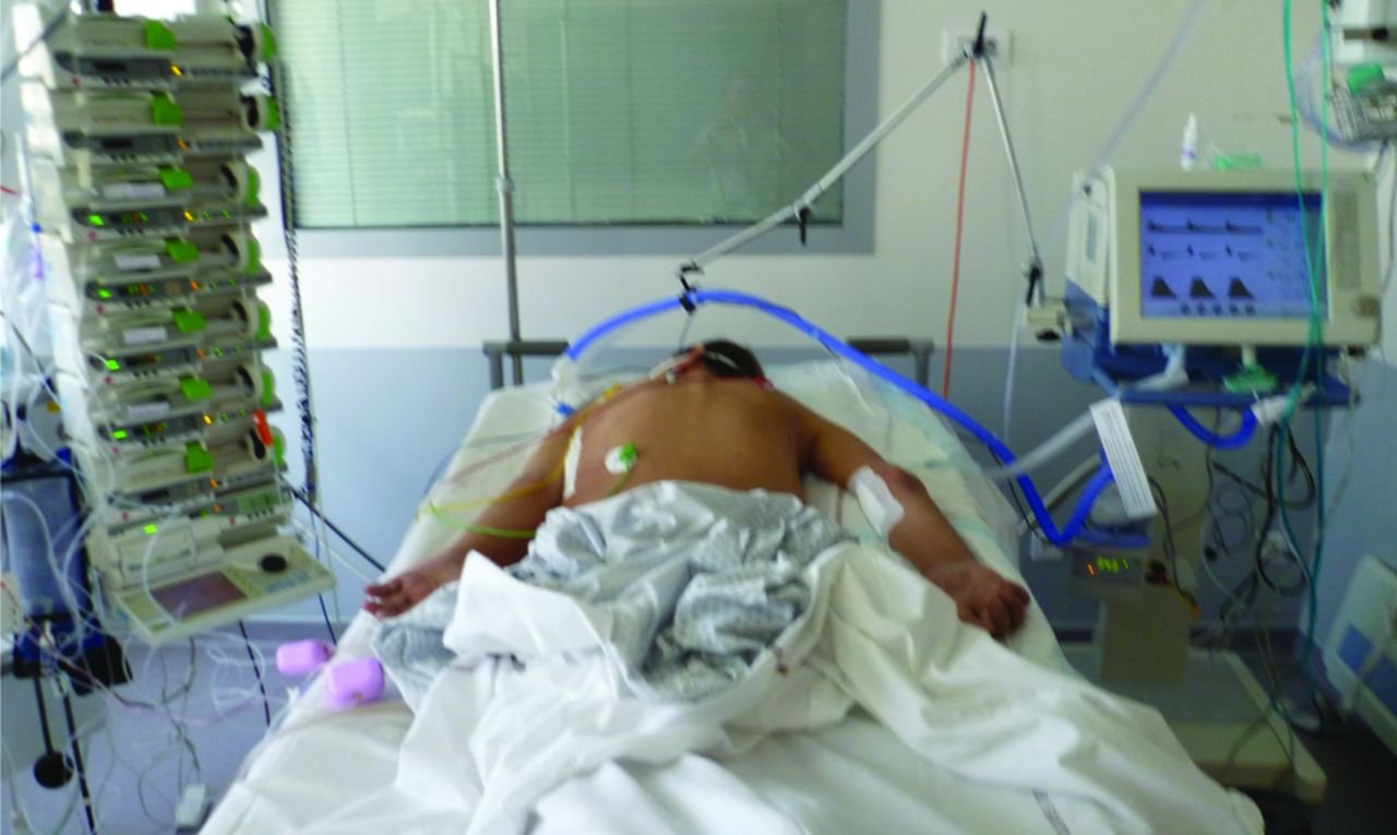 Prone ventilation in acute respiratory distress syndrome ...