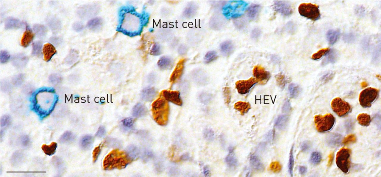 Mast cells in human airways: the culprit? | European Respiratory Society