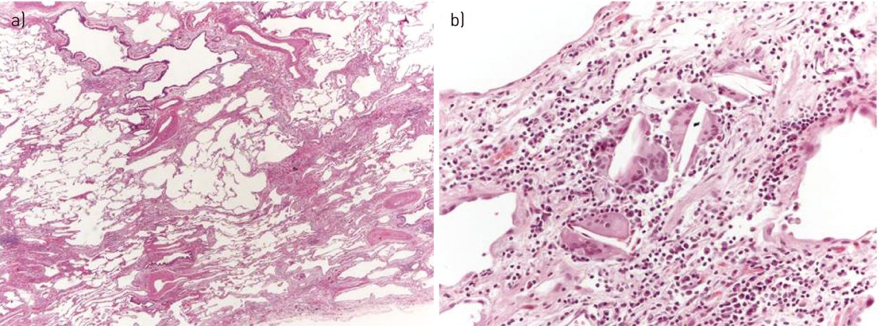 Differential Diagnosis Of Usual Interstitial Pneumonia When Is It Custom Uip Pattern