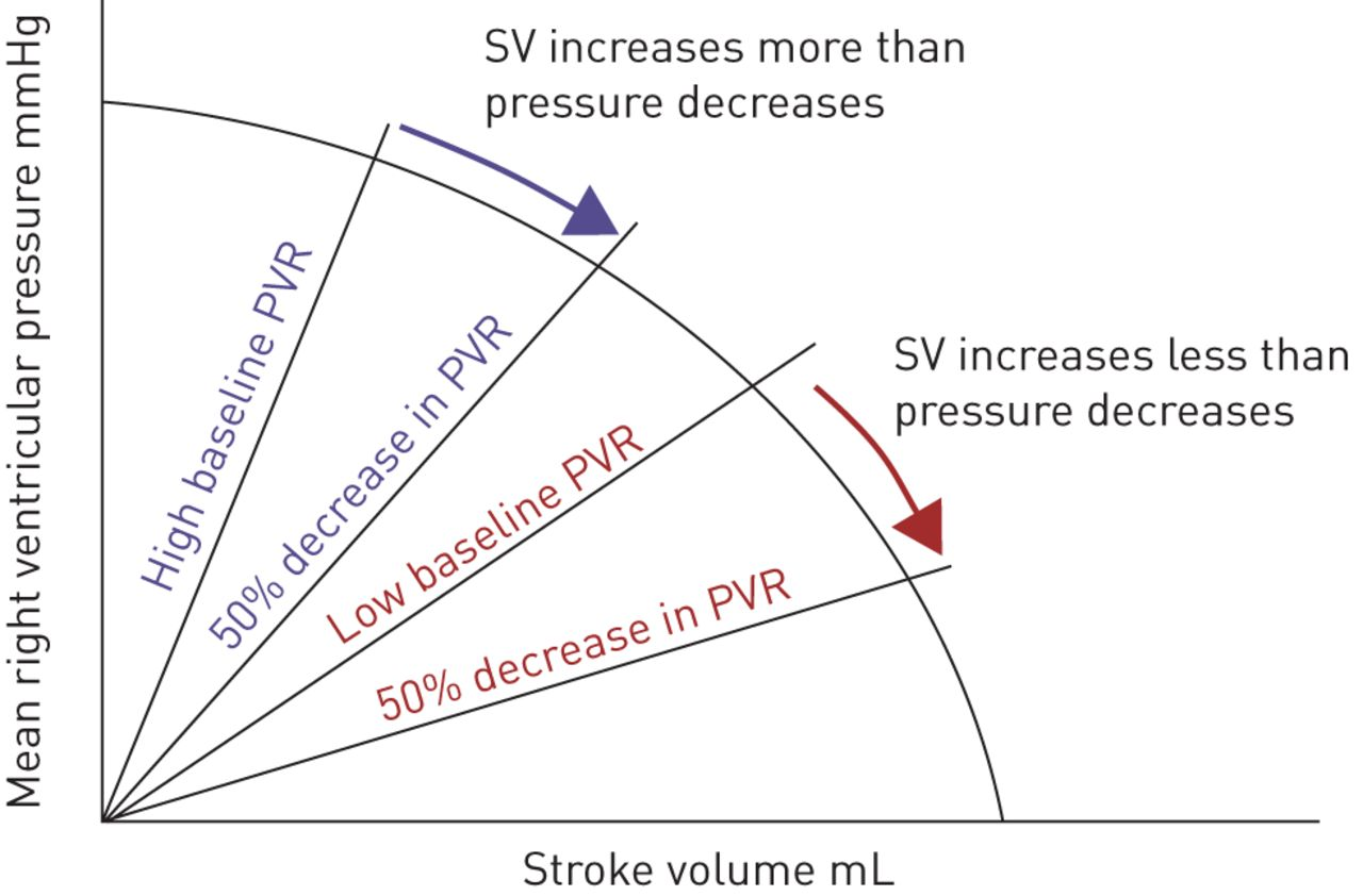 The right ventricle in pulmonary arterial hypertension | European
