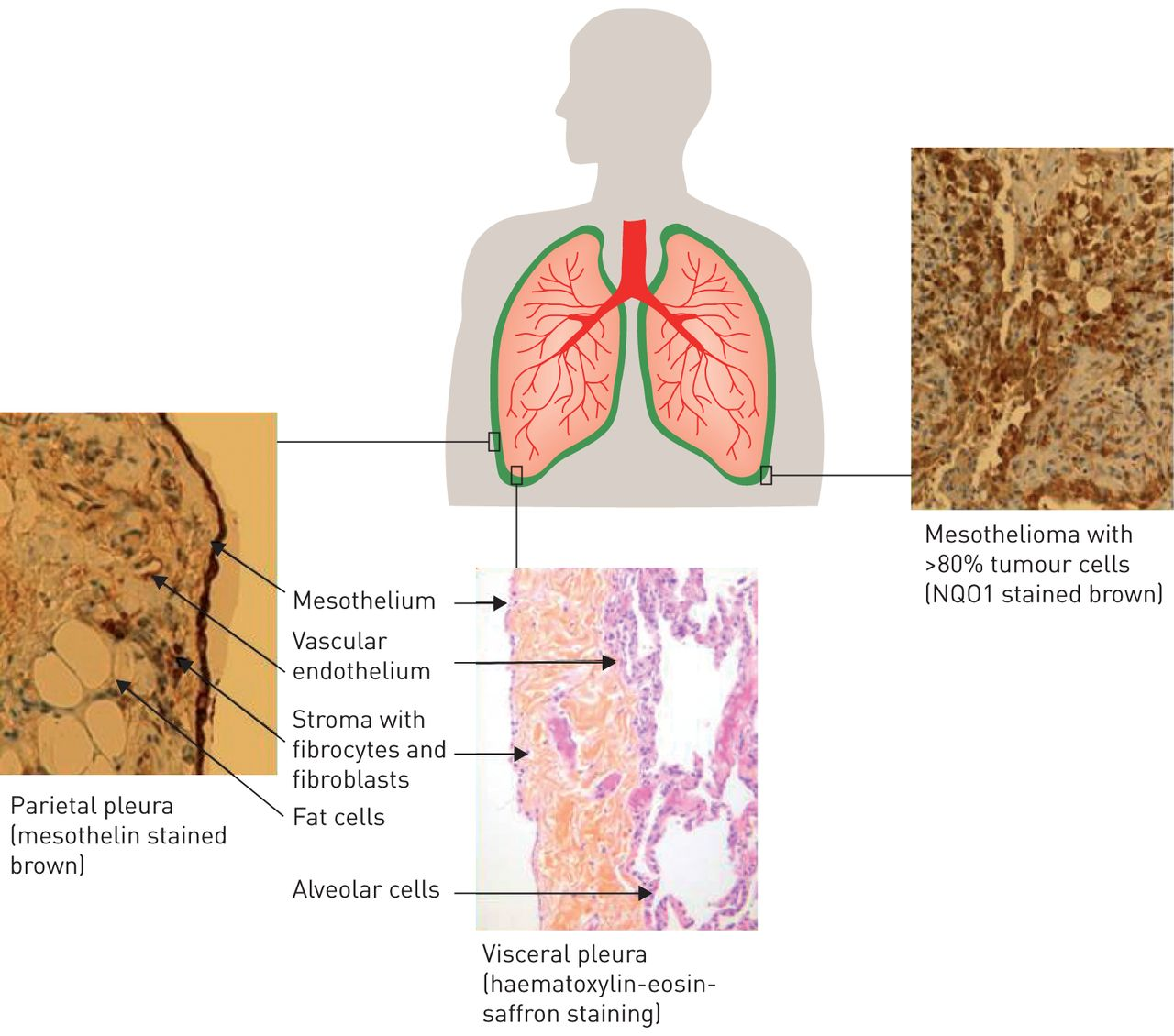 Malignant Pleural Mesothelioma History Controversy And Future Of A