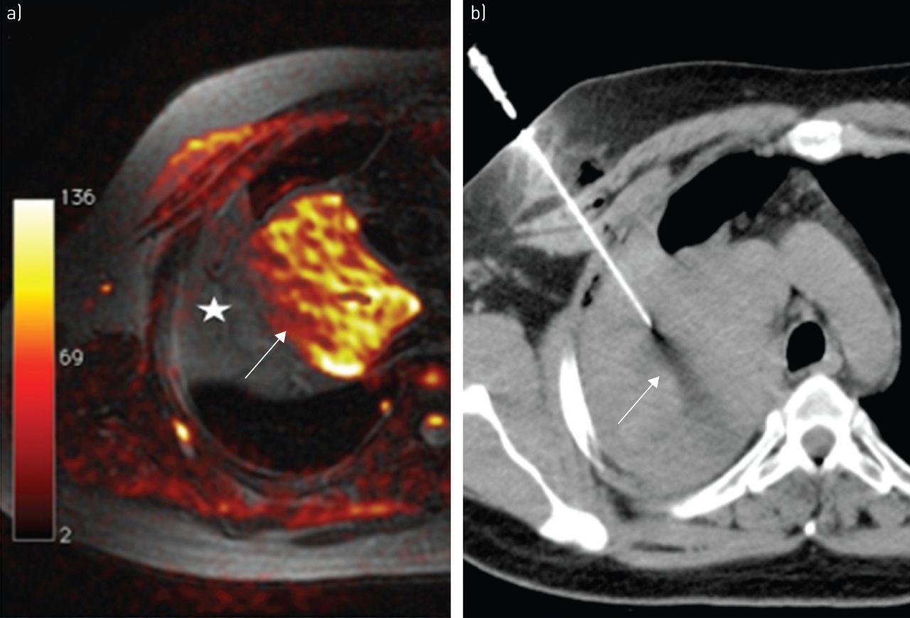 Lung imaging   European Respiratory Society