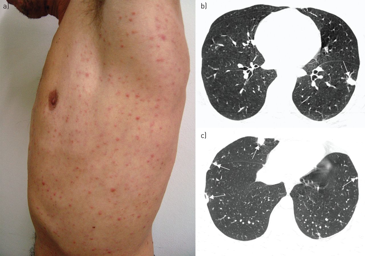 A Skin Rash With Multiple Pulmonary Nodules European Respiratory Society