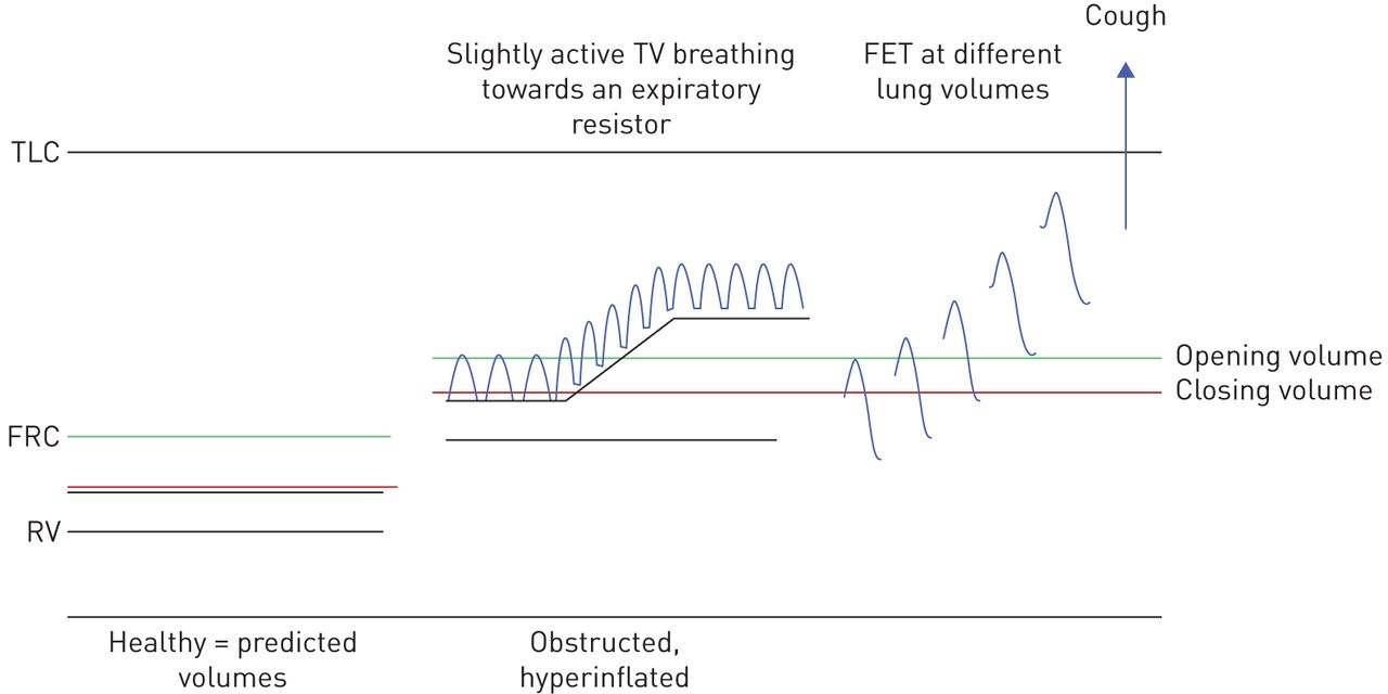 Personalising Airway Clearance In Chronic Lung Disease European Click Explanation Of Mechanical Tv Block Diagram Download Figure
