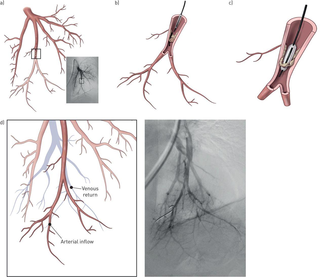 balloon pulmonary angioplasty in chronic thromboembolic pulmonary