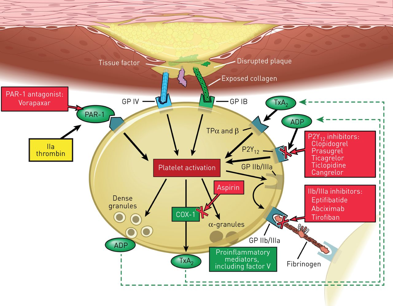 Management of antithrombotic agents in patients undergoing