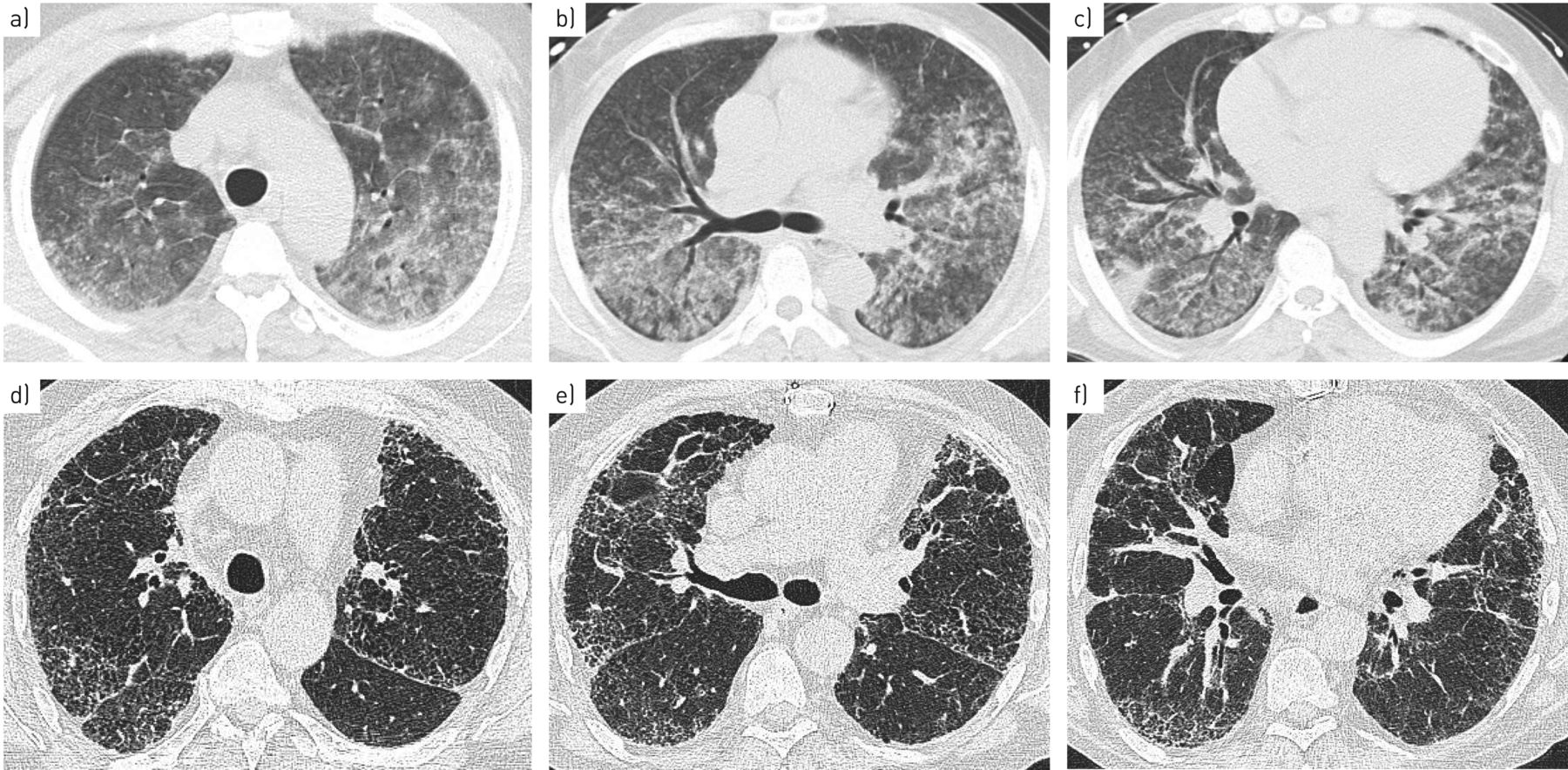crack lung ct