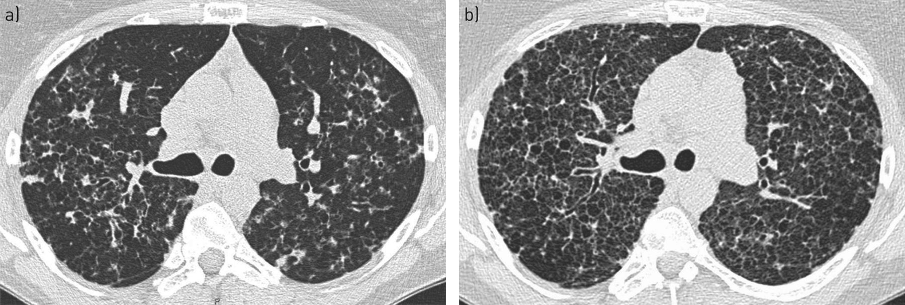 How I manage pulmonary Langerhans cell histiocytosis