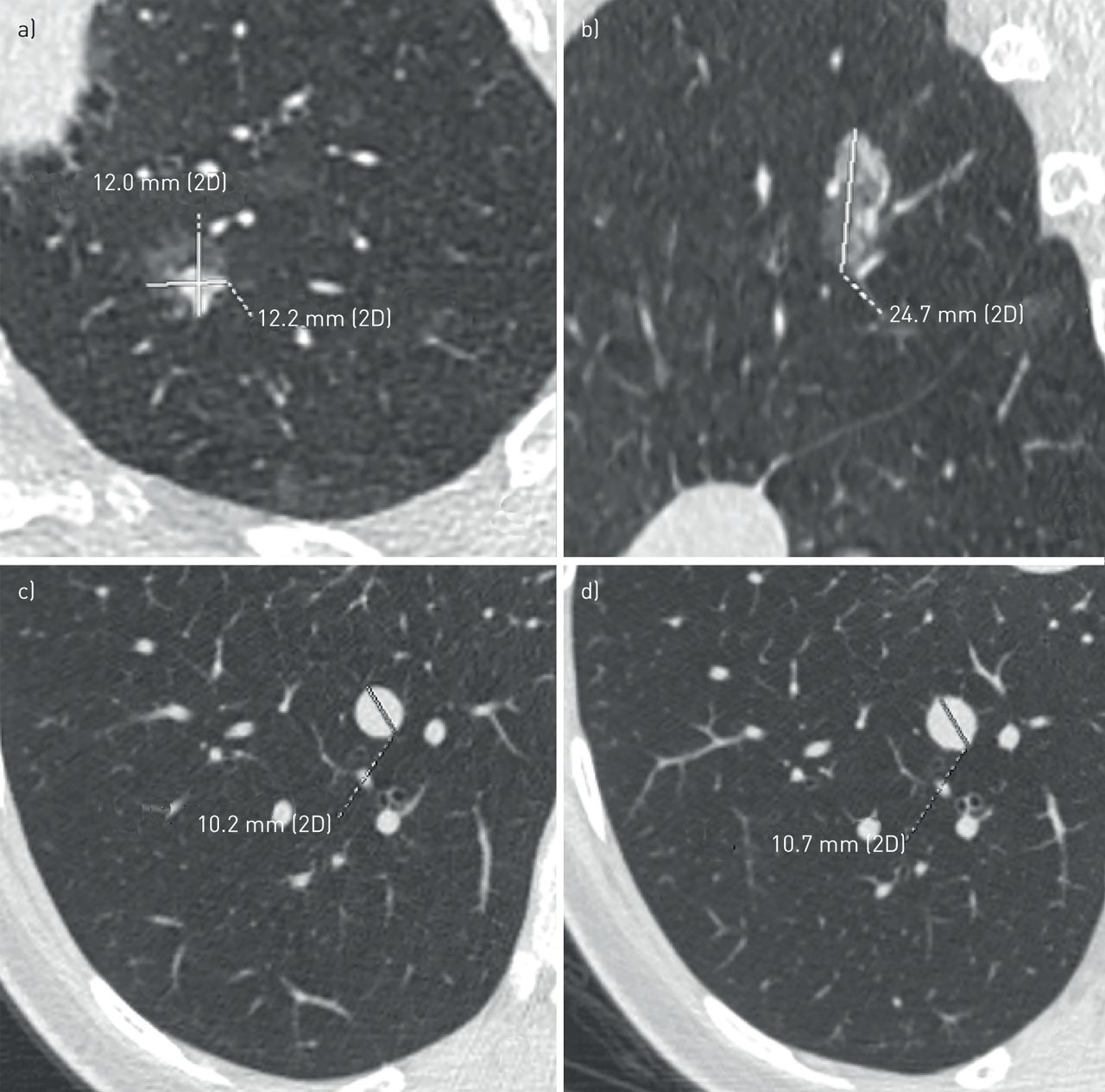 Lung nodules: size still matters   European Respiratory Society