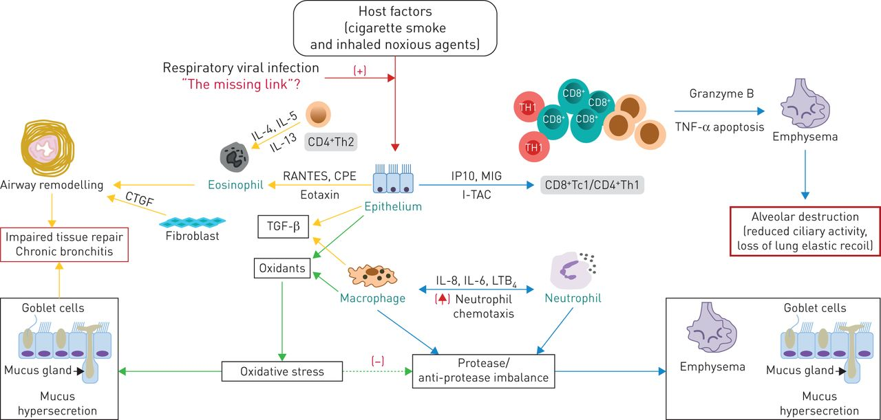 """Respiratory Viral Infection: A Potential """"missing Link"""" In"""