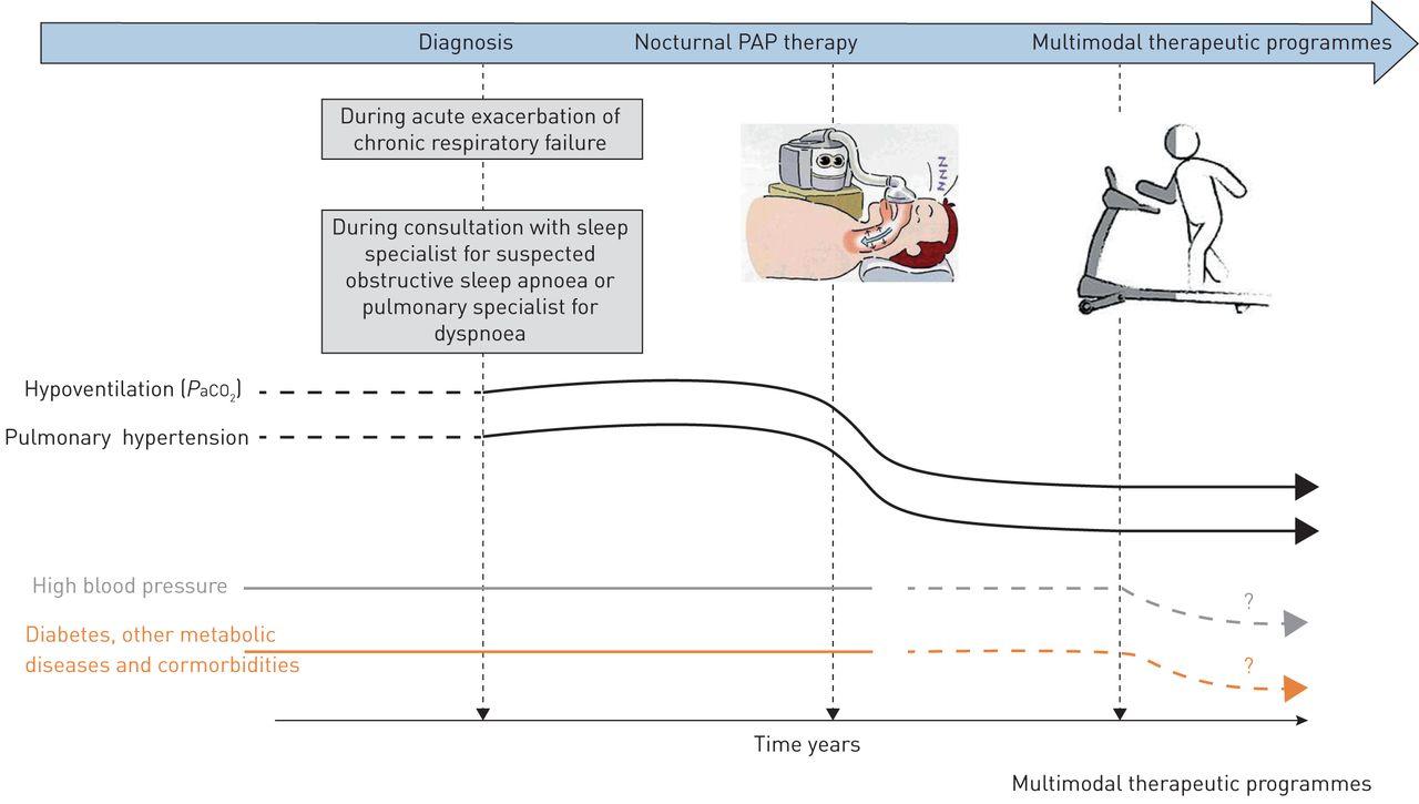Obesity hypoventilation syndrome | European Respiratory Society